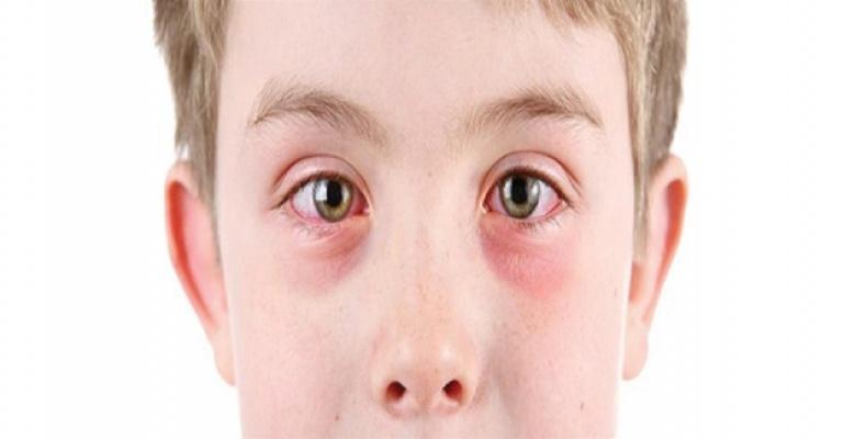 Gözde enfeksiyonlara da neden oluyor
