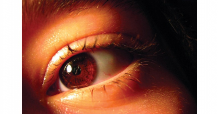 Gözün sinir tabakasını zedeliyor.
