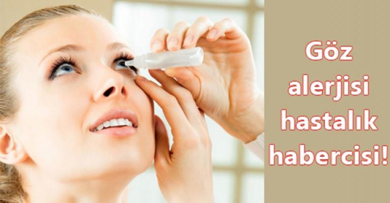Vücuttaki birçok alerji gözde bulgu verebilir!