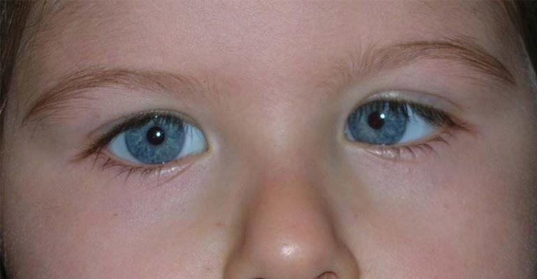 Hatalı gözlük camı çocukları şaşı yapıyor!