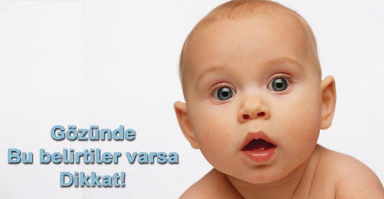 Bebek ve Çocuklarda Glokom Belirtileri