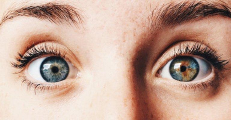 Dünyaya Yansıyan Farklı Gözler: Heterokromi