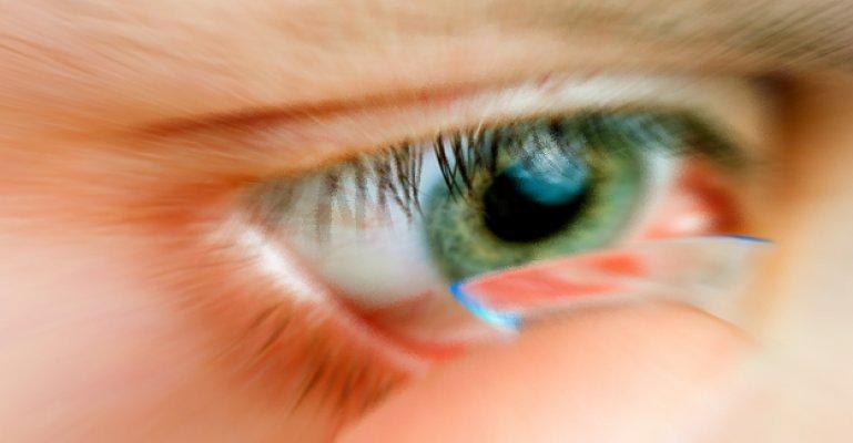 Lens Nasıl Takılır, Nelere Dikkat Edilmesi Gerekir?