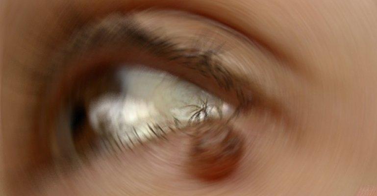 Göz Kapağındaki Benler Tümör Habercisi Olabilir mi?