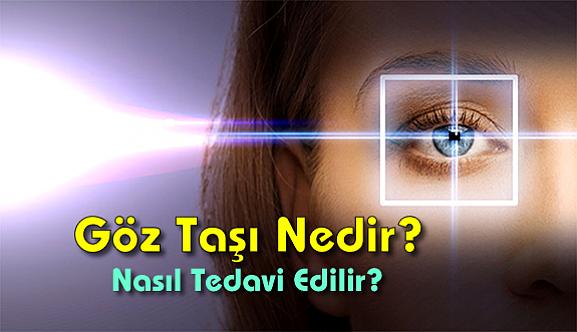 Göz Taşı Nedir? Nasıl Tedavi Edilir?