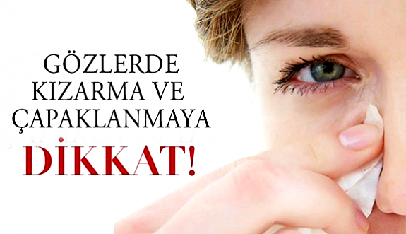 Gözlerinizde çapaklanma ve batma hissi varsa…
