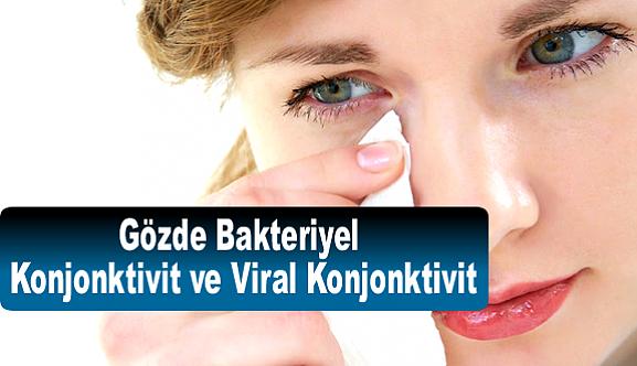 Gözde Bakteriyel  Konjonktivit  ve Viral Konjonktivit