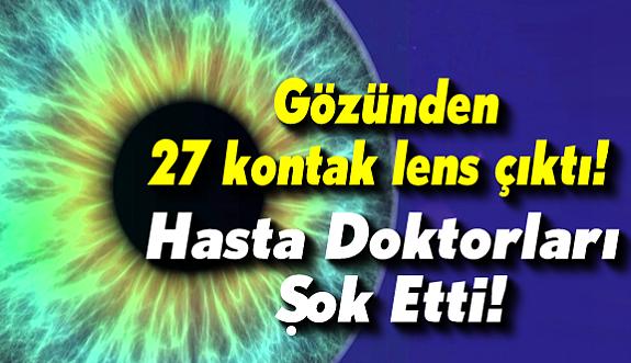 Katarakt ameliyatına gelen hastanın gözünden 27 lens çıktı!