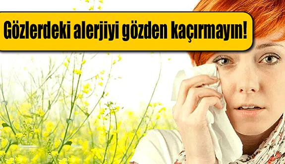 Gözlerdeki alerjiyi gözden kaçırmayın!