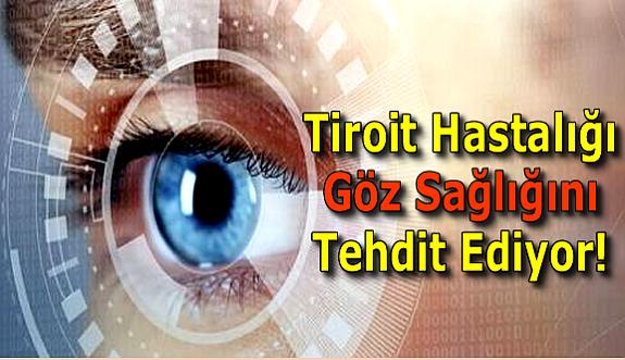 Tiroit Hastalığı Göz Sağlığını Tehdit Ediyor!