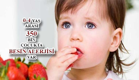 Türkiye'de Besin Alerjisi Son 10 Yılda 2 Kat Arttı