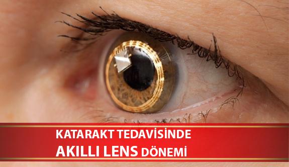 Katarakt Tedavisinde Akıllı Lens Dönemi