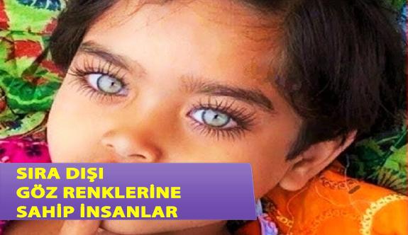 Sıra Dışı Göz Renkleriyle İnsanları Büyüleyen 6 Kişi