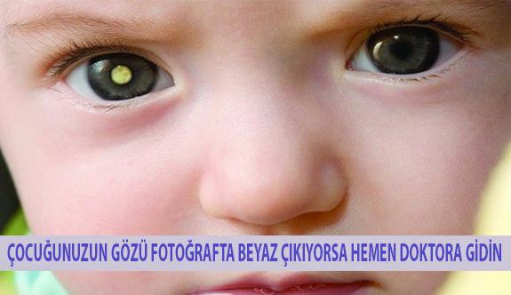 Çocuğunuzun Gözü Fotoğrafta Beyaz Çıkıyorsa Hemen Doktora Gidin