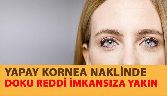 Yapay Kornea Naklinde Doku Reddi İmkansıza Yakın...