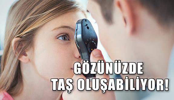 Göz Taşı Nedir? Belirtileri Nelerdir?