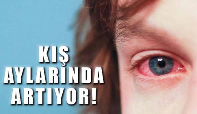 Kış aylarında göz enfeksiyonuna dikkat!