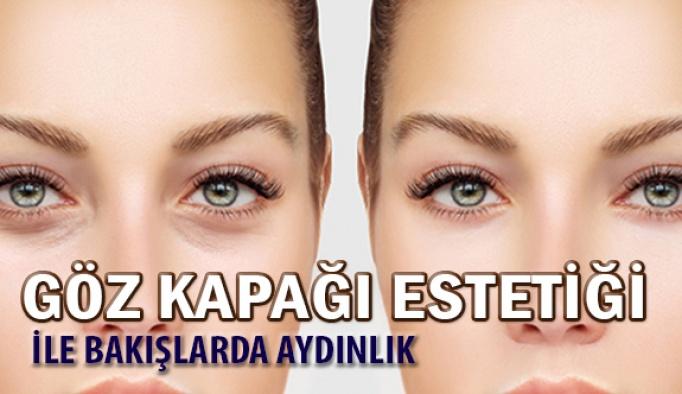 Göz Kapağı Estetiği ile Bakışlarınız Aydınlanıyor