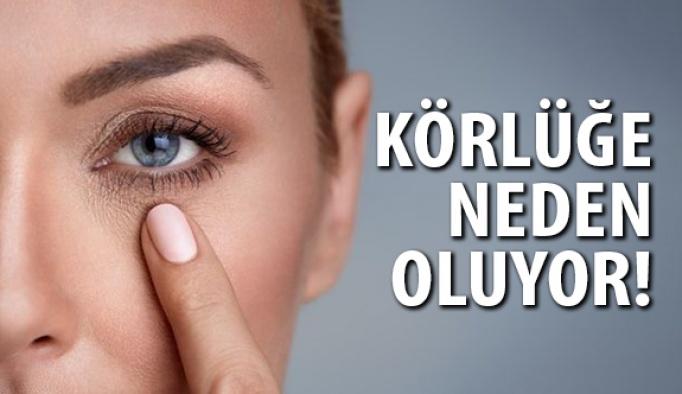 Göz tansiyonu körlüğe neden olabilir