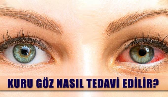 Göz Kuruluğu Nedir? Nasıl Tedavi Edilir?
