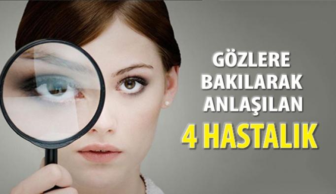 4 Hastalık Gözlere Bakılarak Anlaşılıyor