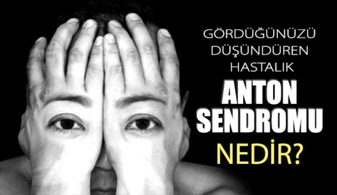 Beynin Göze Yaptığı İllüzyon; Anton Sendromu