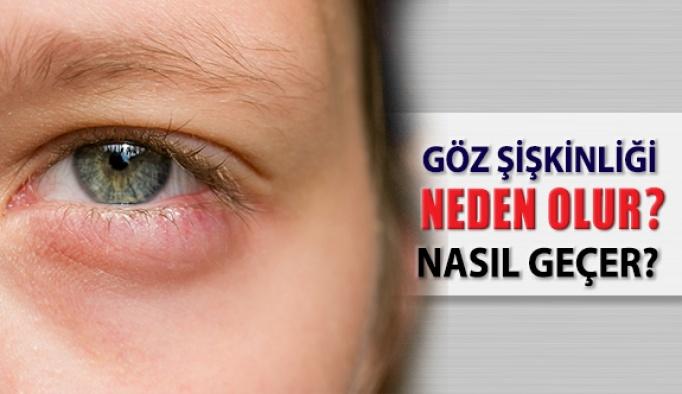 Göz şişkinliği neden olur?  Nasıl Geçer?