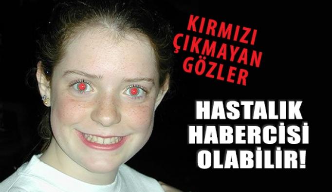 Fotoğraflarda Kırmızı Çıkmayan Gözler Hastalık Habercisi Olabilir!