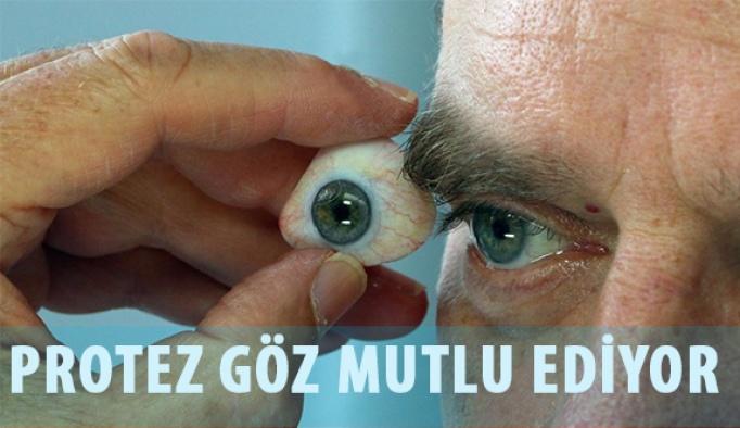 Gözlerini Kaybedenler için Protez Göz Yapıyor