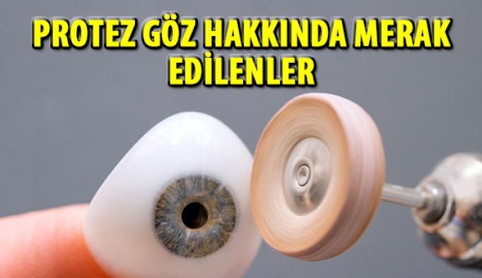 Protez Göz Hakkında Merak Edilenler