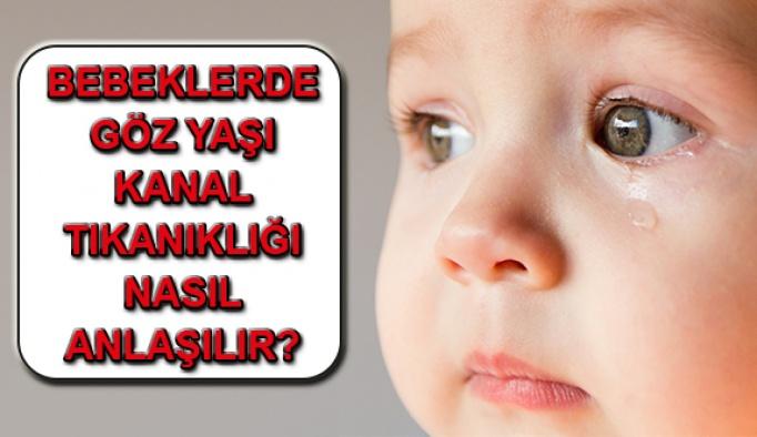 Bebeklerde Göz Yaşı Kanal Tıkanıklığına Dikkat!
