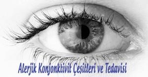 Alerjik Konjonktivit Çeşitleri ve Tedavisi