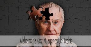Alzheimer Göz Muayenesiyle Teşhis Edilebiliyor!