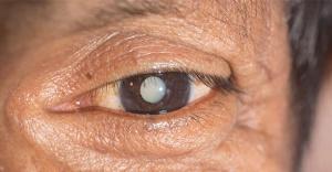 Katarakt İçin Göz Damlası Tedavisi Geliştirildi