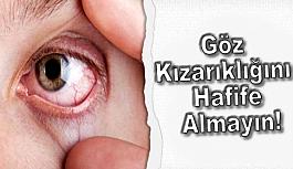 Göz Kızarıklığını Hafife Almayın!
