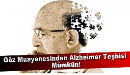 Göz Muayenesinden Alzheimer Teşhisi Mümkün!