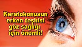 Keratokonusun erken teşhisi göz sağlığı için önemli!