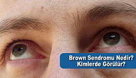 Brown Sendromu Nedir Kimlerde Görülür?