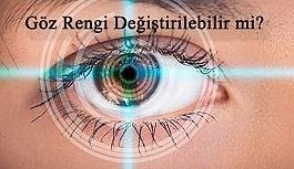 Göz Rengi Değiştirme Operasyonları Hakkında Bilinmesi Gerekenler