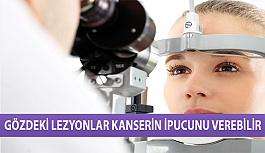 Gözdeki Lezyonlar Kanserin İpucunu Verebilir