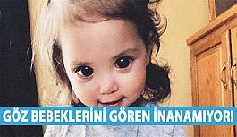 Göz Bebeklerini Gören İnanamıyor!