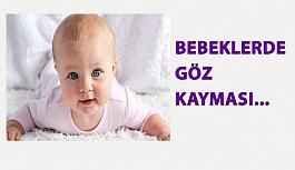 Bebeklerde Göz Kayması…