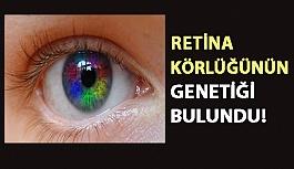Retina Körlüğünün Genetiği Bulundu!
