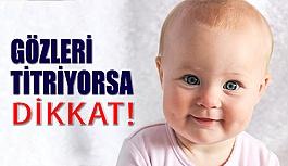 Bebeğinizin Gözleri Titriyorsa Dikkat