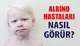 Beyaz Melek Albino Hastaları Ve Görme Kusurları