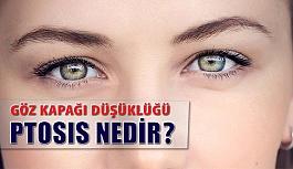 Göz Kapağı Düşüklüğü (Ptosis) Nedir?