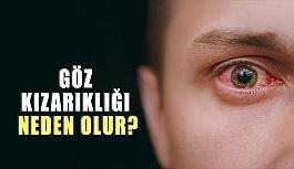 Göz Kızarıklığı Neden Olur? Nasıl Geçer?