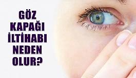 Göz Kapağı İltihabı Tedavisi Nasıl Yapılır?