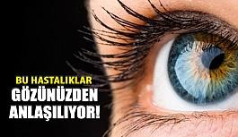 Gözlere Bakılarak Anlaşılan 4 Hastalık