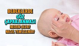 Bebeklerde Göz Bakımı